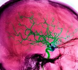 Спасает ли кровопускание от инсульта?